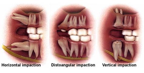 Impacted Wisdom Teeth City Dental Clinic